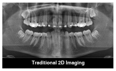 Dental-Implants-Advanced-Technology-2D-Image