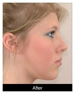 Oral-Surgery-Corrective-Jaw-Surgery-After-1-Image