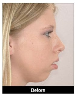 Oral-Surgery-Corrective-Jaw-Surgery-Before-1-Image