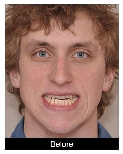 Oral-Surgery-Corrective-Jaw-Surgery-Before-2-Image