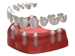 Dental-Implants-Treatment-Options-Landing-Page-Complete-Tooth-Replacement-Image