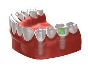 Dental-Implants-Treatment-Options-Landing-Page-Multiple-Dental-Implants-Image
