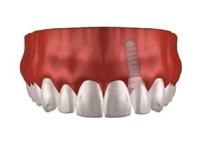 Dental-Implants-Treatment-Options-Landing-Page-Single-Dental-Implant-Image
