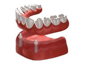 Dental-Implants-Treatment-Options-Replacing-All-Teeth-Left-Image