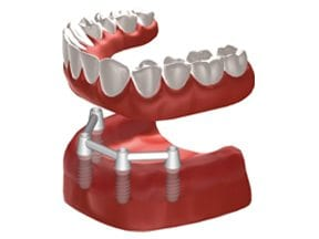 Dental-Implants-Treatment-Options-Replacing-All-Teeth-Middle-Image
