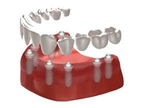 Dental-Implants-Treatment-Options-Replacing-All-Teeth-Right-Image