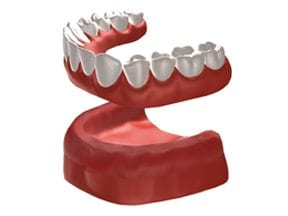Dental-Implants-Treatment-Options-Replacing-All-Teeth-Top-Image