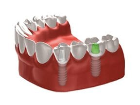 Dental-Implants-Treatment-Options-Replacing-Multiple-Missing-Teeth-Right-Image