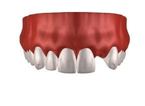 Dental-Implants-Treatment-Options-Replacing-Single-Missing-Tooth-Left-Image