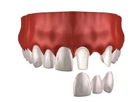 Dental-Implants-Treatment-Options-Replacing-Single-Missing-Tooth-Middle-Image