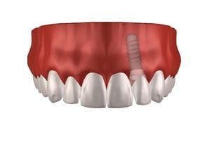Dental-Implants-Treatment-Options-Replacing-Single-Missing-Tooth-Right-Image
